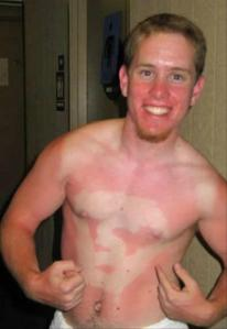 sunburn-pictures-dumpaday-14